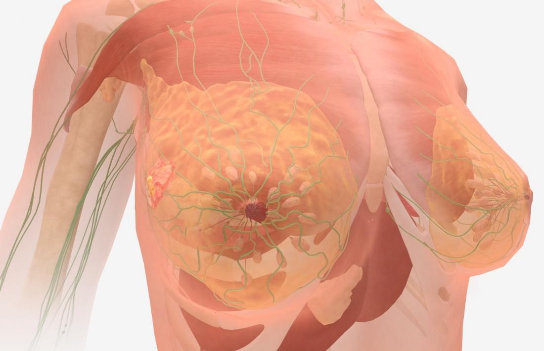 breast metastatic terminal cancer is