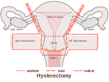 sex after laparoscopic hysterectomy