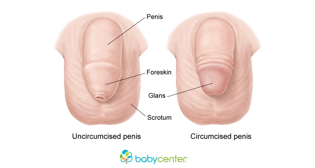 like does penis an what look uncut